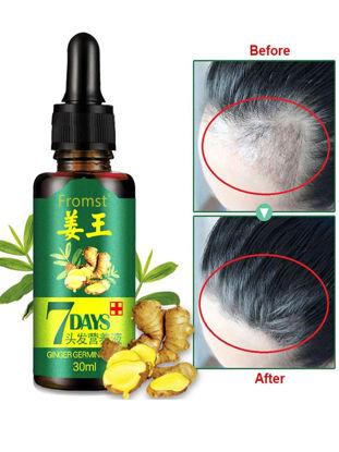 Picture of Hair Growth Essence Liquid Fast Hair Growth Natural Hair Loss Treatment For Men and Women 30ml